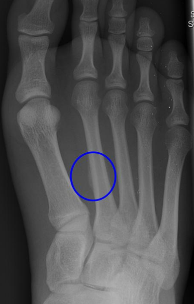 Stress Fractures Jay Dicharry S Website An Athlete S Body
